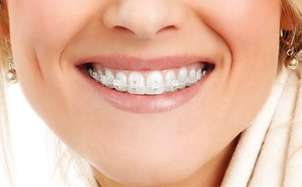 Работа над улыбками или для чего исправлять прикус?
