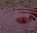 Кровавая история Тульского сквера
