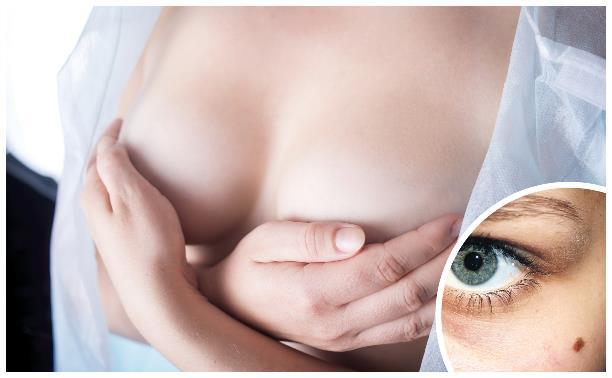 Рак груди и кожи: как проверить себя?