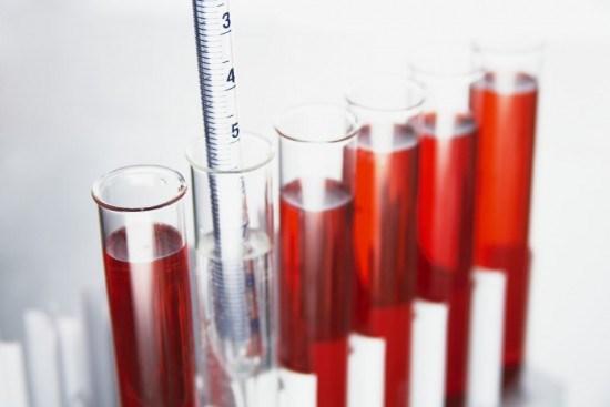 Стоимость анализов крови в туле
