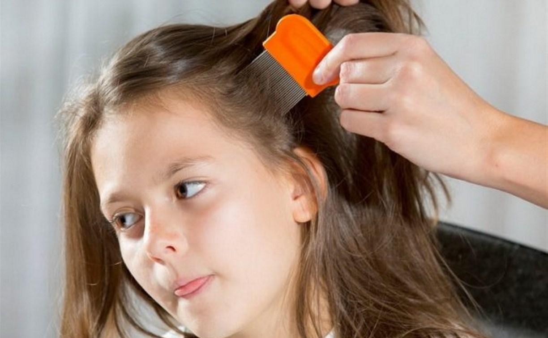С начала года в Тульской области насчитали 136 вшивых детей