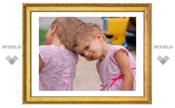 Американские хирурги решили не разделять сросшихся головами близнецов
