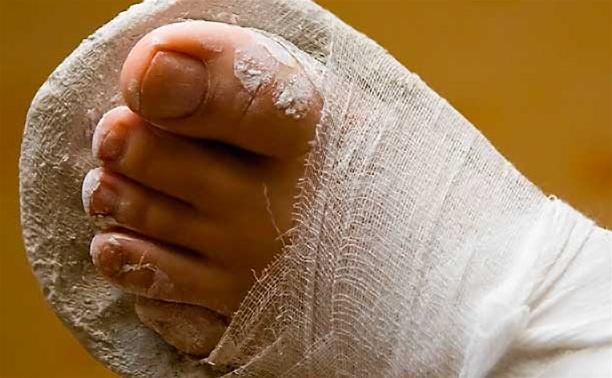 Избитый косогорскими коммунальщиками житель: «У меня сломана нога»