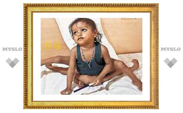 Индийские хирурги оперируют девочку с восемью конечностями