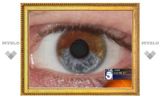 """Разработана методика """"перекрашивания"""" глаз лазером"""