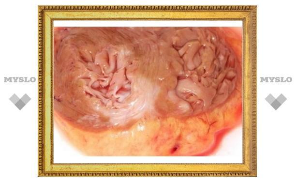 Рубцовую ткань превратили в мышечную ткань сердца без стволовых клеток