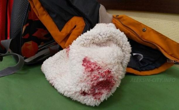 В Алексине упавшая сосулька пробила голову школьнику