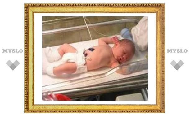 Запланированное кесарево сечение вредит ребенку