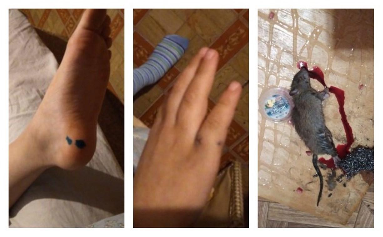 В Тульской области крыса покусала спящих детей: следователи проведут проверку