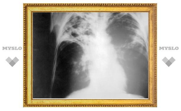 Минздрав сообщил о снижении смертности от туберкулеза в России