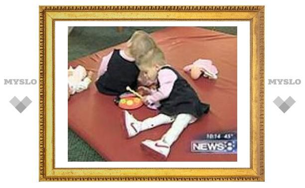 Американские хирурги разделят сросшихся головами близнецов