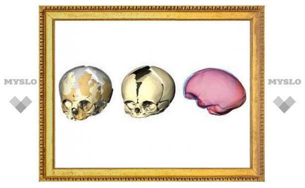Найдены отличия между мозгом человека разумного и неандертальца