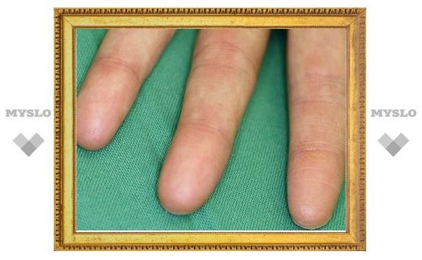 В Туле женщина лишилась трех пальцев во время производственных работ