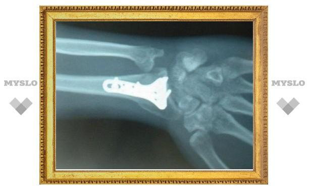 Ученые изобрели растворимые крепления для сломанных костей
