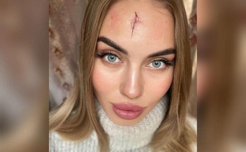 В караоке неадекватная женщина разбила девушке лицо ботильоном