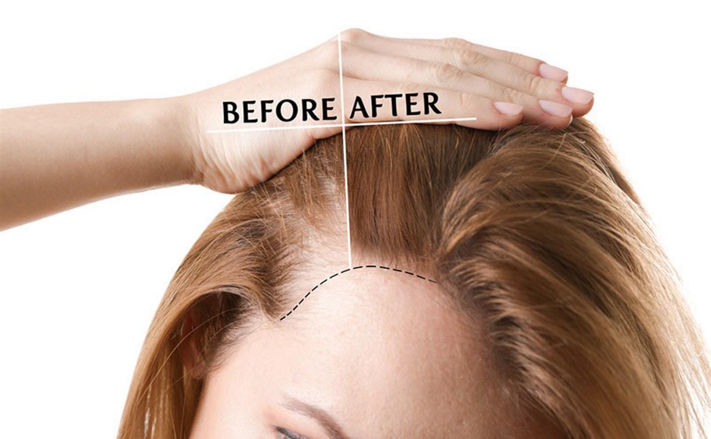 Обзор маски для ослабленных волос Princess Hair