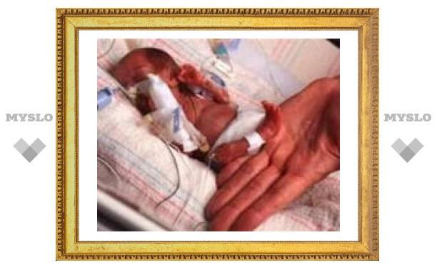 Липецкие врачи выходили младенца, весившего 450 граммов
