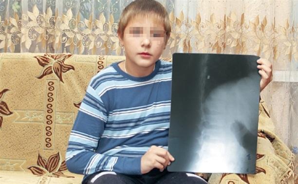Туляк выстрелом из «воздушки» искалечил ребенка