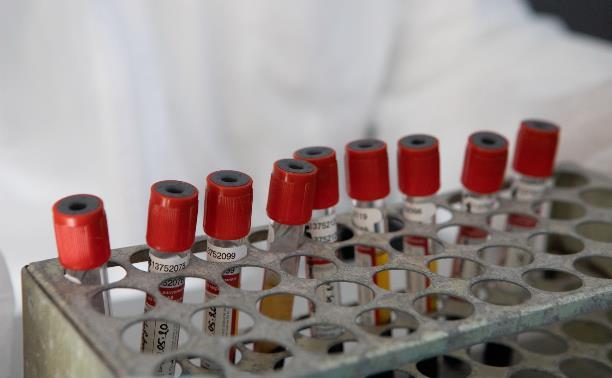 В Тульской области 32 новых случая коронавируса