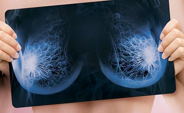 Тулячек приглашают на бесплатный осмотр маммологов для профилактики рака груди