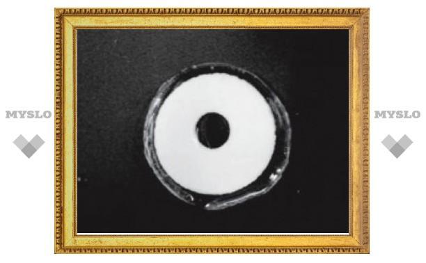 Контактные линзы с лекарствами заменят глазные капли