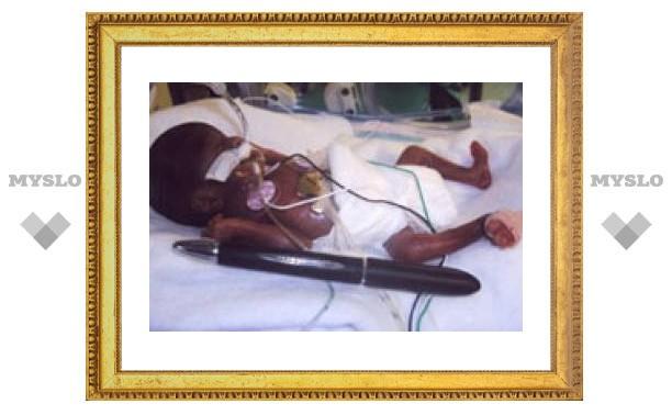 Врачи спасли новорожденную девочку весом 284 грамма