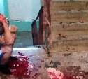 В Энгельсе жестоко избили парня из Тулы (фото 18+)