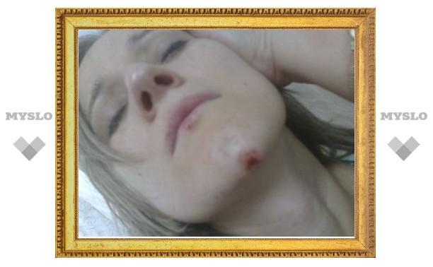 Избитого в Дагестане адвоката заподозрили в симулянтстве