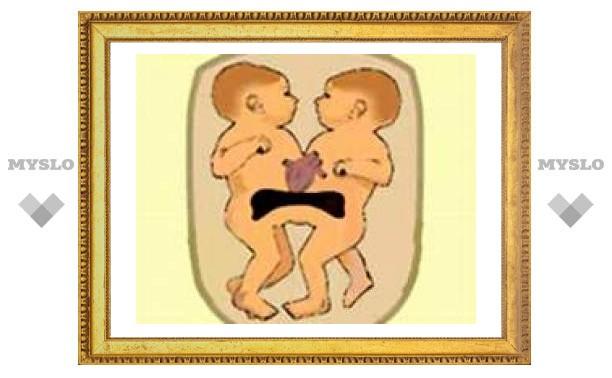 Сросшихся сердцами близнецов разделили в Таиланде