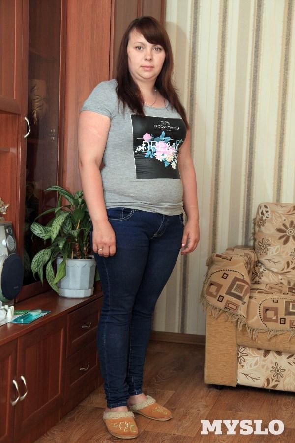 Яна Семёнова, 25 лет. Рост 156 см, вес 86 кг: «Похудеть – моя мечта. Пробовала стать стройной самостоятельно, но всё, чего я могла достичь, это снижение веса на 3-5 кг. К тому же они быстро возвращались. У меня появились одышка, боль в спине и ногах. К тому же хочется надеть короткую юбку, платье. Хочу, чтобы мой муж восхищался моей фигурой. У меня маленькая дочь, и мне хочется, чтобы она гордилась своей стройной мамой. Я надеюсь, что специалисты помогут осуществить мою мечту».