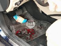 В серьезном ДТП на М-2 в Туле пострадали три человека, Фото: 12