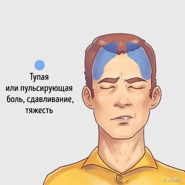 Если безумно болит голова
